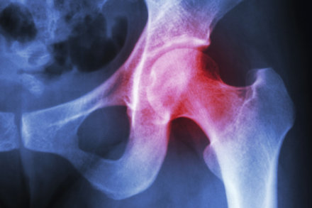 Osteoarthritis is a condition that affects the joints