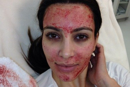 Kim Kardashian reveals the effects of a vampire facial