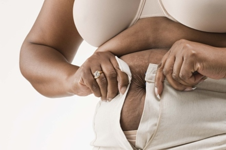Could obesity shorten your life?