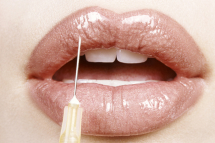 Would you get lip fillers for a fuller pout?
